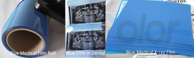 8*10 Inch Inkjet Printing Medical Film , X-ray Blue Medical Imaging Film for Epson L300 Printers