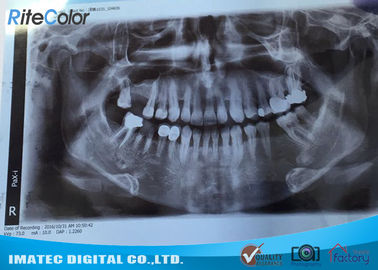 China 8*10 Inch Inkjet Printing Medical Film , X-ray Blue Medical Imaging Film for Epson L300 Printers distributor